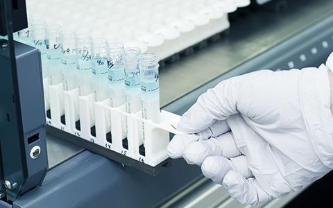 病気予防のニーズに応える遺伝子検査